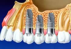 Имплантанты зубов