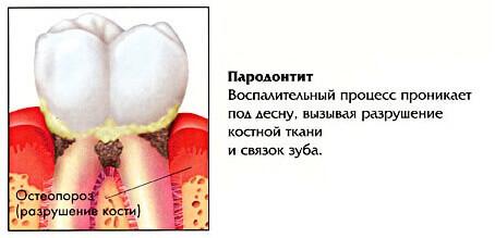 лечение пародонтита в томске