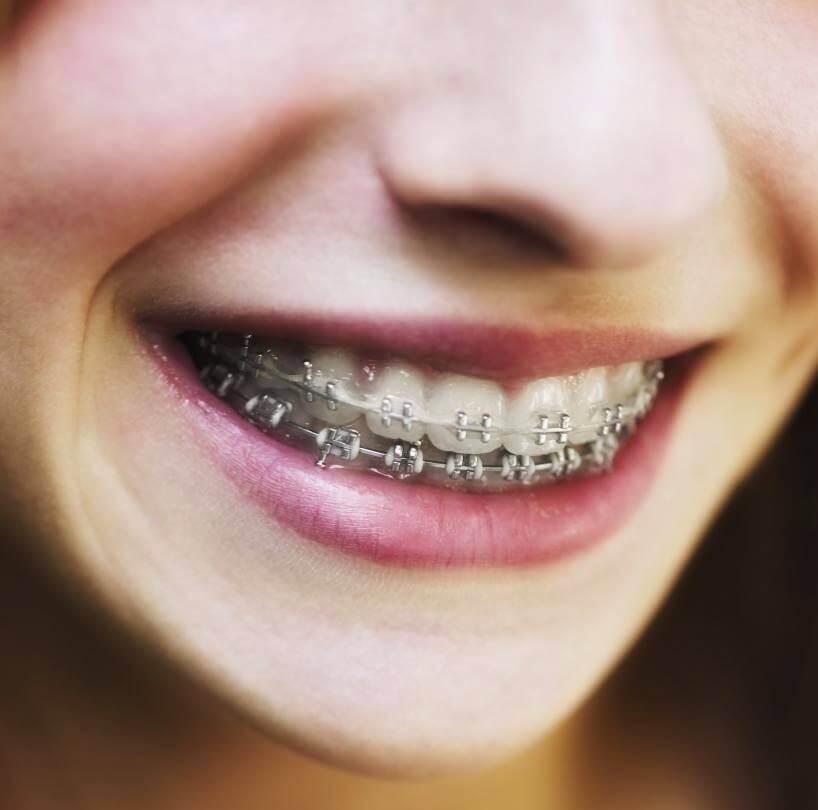 исправление неправильно расположенных зубов
